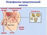 Алфупрост от простатита