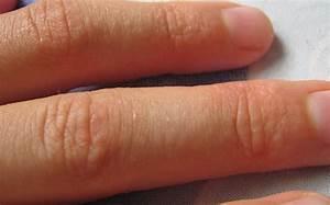 Лечение папиллом на гениталиях при беременности