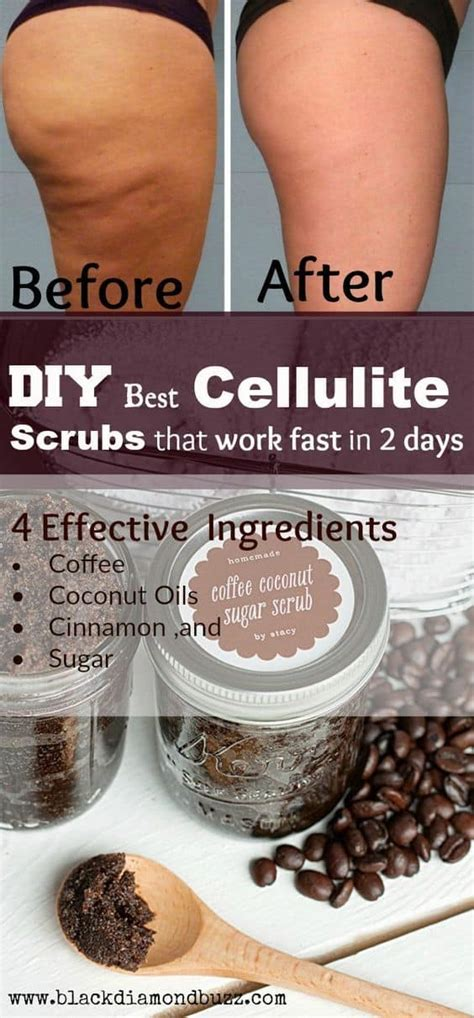 You may be able to find the same content in another format, or you may be able listen, there are a lot of diy coffee scrubs out there, but i'm personally a fan of this easy recipe from youtuber abetweene. Homemade Anti-Cellulite Coffee Scrubs