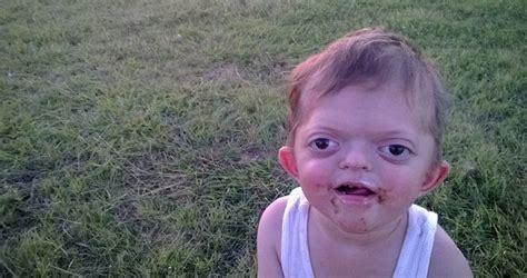 Jameson Meme - mum posts picture of disabled son trolls turn it into cruel pug meme metro news