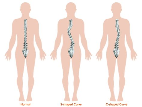 Orthopaedia Children Scoliosis Curved Spine Treatment