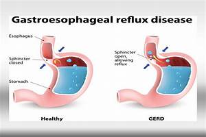 What Are The Basics Of Gastroesophageal Reflux Disease