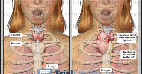 Thyroid-enlarged_goiter.jpg (792×612) …