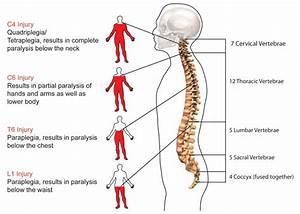 Spinal Cord Injury  U2013 Mt Kenyatimes