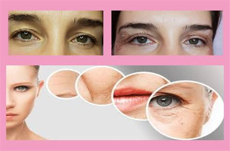 plasma pen mole fibroblast face lift removal spot beauty remover wrinkle plasmapen treatment eyelid acupuncture laser discount medical jet korea