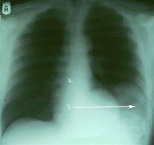 Diaphragmatic rupture - Wikipedia