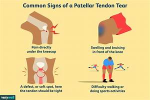 Tendonitis Of The Knee