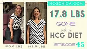 hCG Diet Interviews - Episode 45 - Lynette