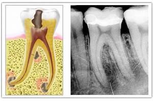 Quel Anti Inflammatoire Pour Une Douleur Dentaire : endodontie eid hopital am ricain de paris ~ Medecine-chirurgie-esthetiques.com Avis de Voitures