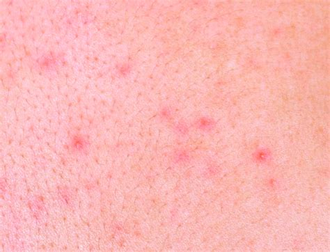 Allergy Rash  Pictures, Symptoms, Treatment, Causes. Retirement Investment Company. How Soon After Buying A House Can I Refinance. Car Glass Repair Oakland How To Invest In Ira. Lightweight Banner Stands Editing Classes Nyc. Best Mba Programs In Dc Sr22 Insurance Policy. Virginia Universities And Colleges. Bankruptcy Lawyers In Tacoma Wa. Employee Expense Report Form
