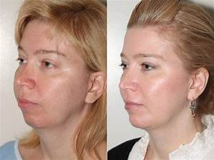 What Is An Opportunity For You To Improve On Professionally Facial Liposuction Vancouver By Cosmetic Surgeon Dr Denton