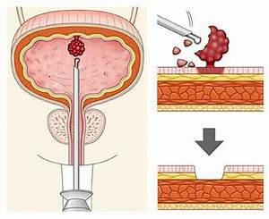 Папиллома мочевого пузыря у мужчин лечение