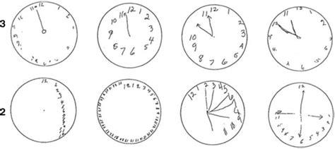 clock drawing test clock drawing test neupsy key