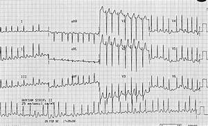 Hyperthyroidism Ecg Changes  U2022 Litfl  U2022 Ecg Library Diagnosis