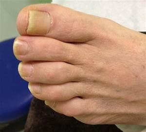 Онемение пальцев ног при сахарном диабете лекарство