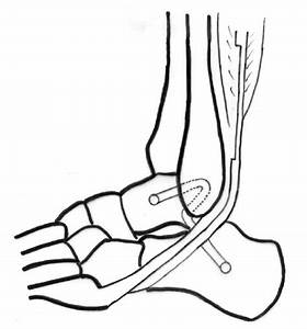 Schematic Diagram Showing Lateral Ankle Ligament