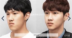 Double Jaw Surgery in Korea | Regen Plastic Surgery | 10 ...