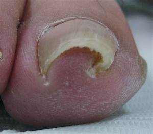 Typical Appearance Of Pincer Nail  Transverse