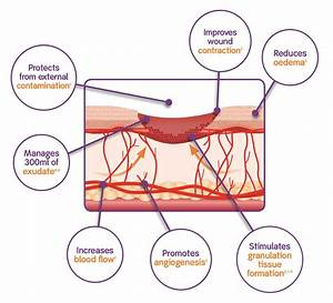Contusion Wound Diagram