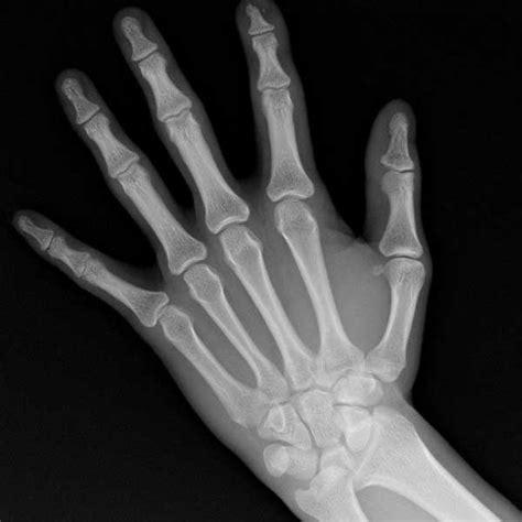 fli digital radiography