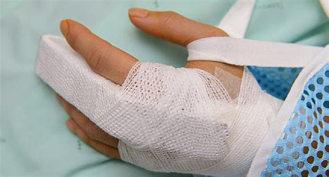 video  broken finger signs  treatments