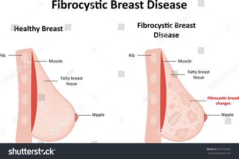 Fibrocystic Breast Disease Stock Illustration 442153633