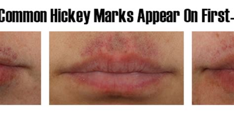 lip pump side effect is bruising is a bad thing www