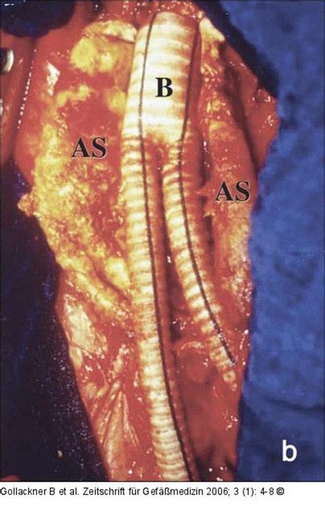 aortenaneurysma  symptoms treatment aortenaneurysma