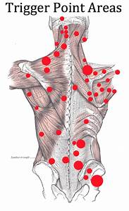 Trigger Point Injections  Arizona Pain Specialists