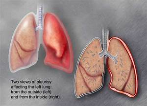 What Is Pluerisy Science Life Processes
