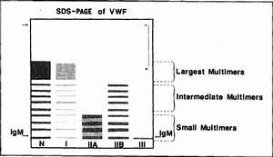 Laboratory Diagnosis Of Von Willebrand U0026 39 S Disease