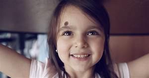 Birthmarks Explained  The Science Behind Birthmarks