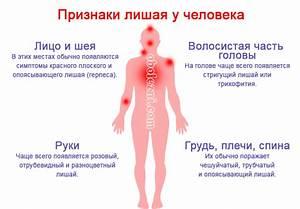 Современные препараты от псориаза на голове