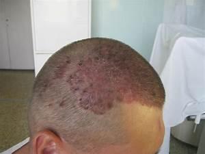 Псориаз лечение в домашних условиях головы