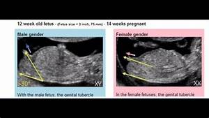 12 Week Ultrasound Potty Shot    What U0026 39 S Your Guess