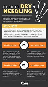 Dry Needling  Pain D U0026 39 Epices And Muscle On Pinterest