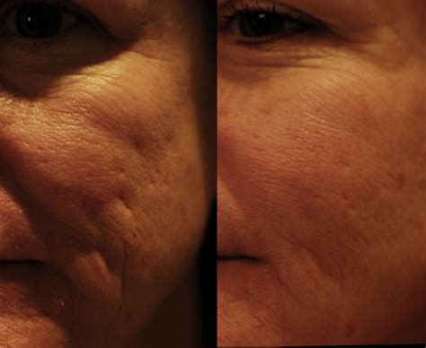 laser acne treatment cost laser scar removal cost