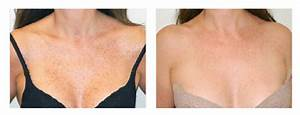 Before and After | Renova Laser Hair Removal & MedSpa ...