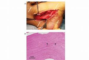Surgical And Histological Findings Of Posterior Tibial