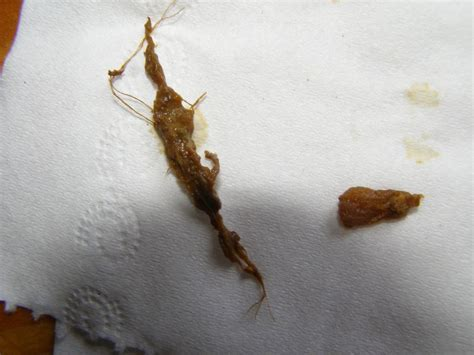 Stool With Pinworms Help With Finding What Worms I In My Stool At