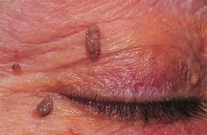 Папилломы лечение на глазах