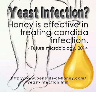 whats    yeast infection home remedy