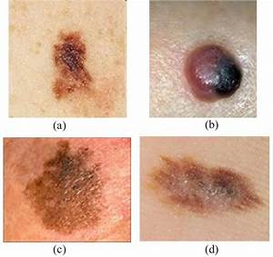 Malignant Melanoma Types. (a) Superficial Spreading ...