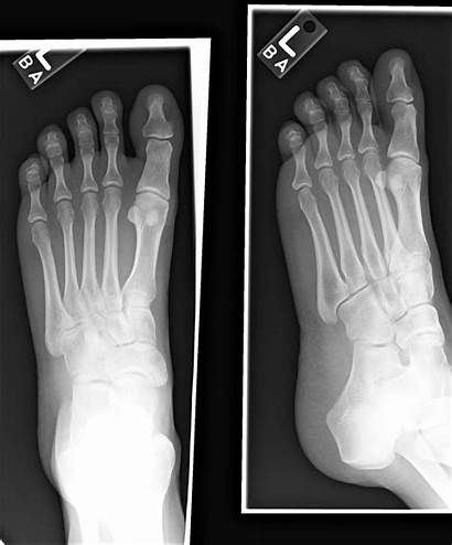 Foot Normal Xray Neuroma Rays Cool Ray