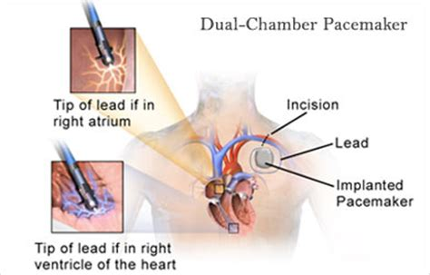what is a pacemaker healthandholidays blog