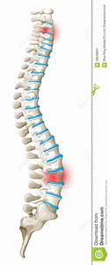 Spine Back Pain Diagram Stock Vector