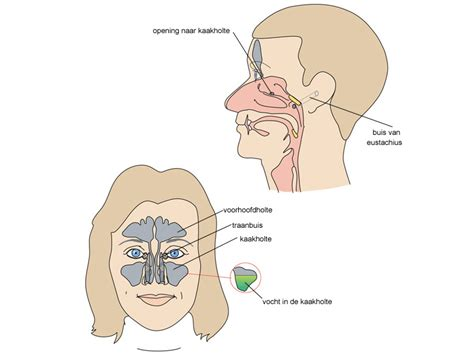 oorpijn bij verkoudheid
