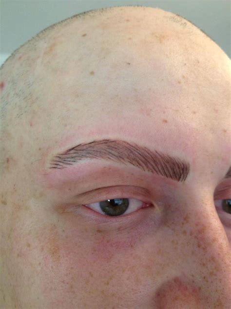 Alopecia Treatments | Permanent Makeup Blog