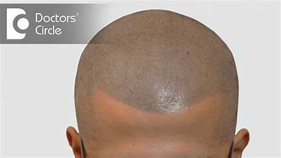 Scalp Pigmentation Micro Process