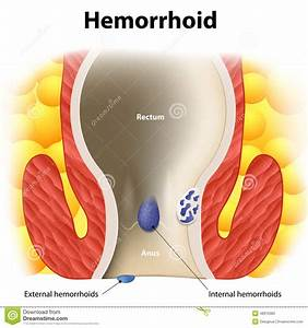 Hemorrhoids Stock Vector  Illustration Of Health  Hemorrhoidal